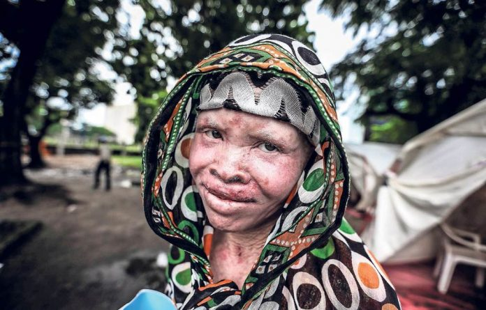 Face of persecution: People living with albinism in Tanzania are part of one of the largest groups that are vulnerable to superstitions about the luck their body parts can bring in the world.